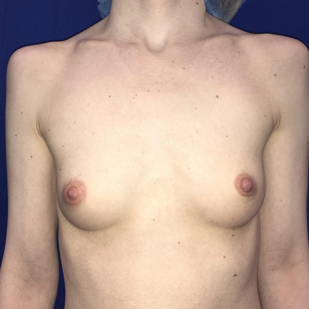 Before Photo of Breasts